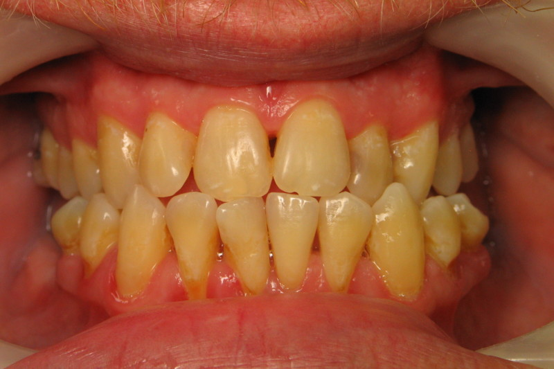 Periodontal Treatment