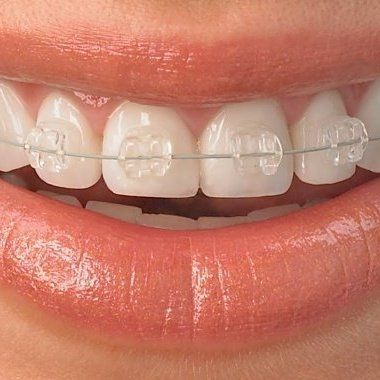 FREE ORTHODONTIC & IMPLANT CONSULTATION