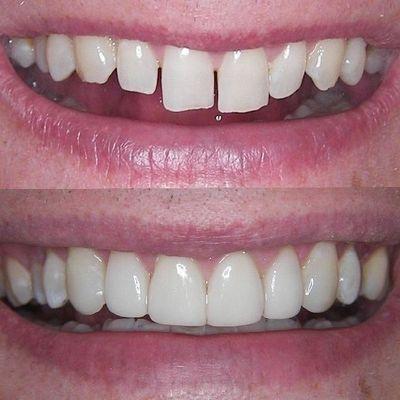 Dental Cosmetic Bonding and Gap Closing in Barnet