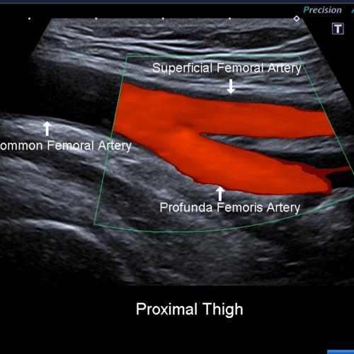 Peripheral Arterial Disease (PAD) Leg