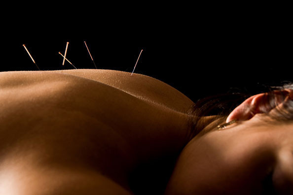 Physiotherapy Melton Mowbray, Acupuncture Sports Injury, Back Pain Injury Neck