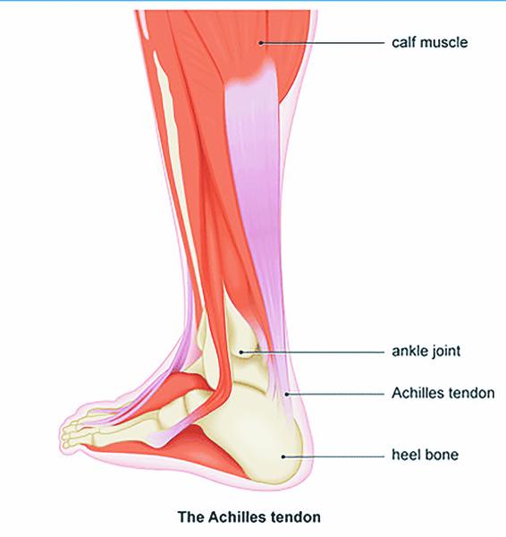 Achilles Pain