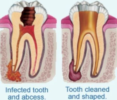 Emergency root canal treatment in North London