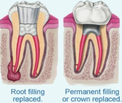 Painless Root Canal Treatment in North London N11