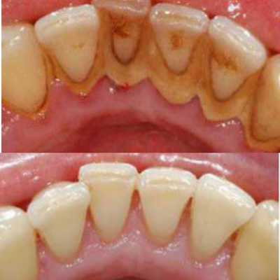 Teeth Stain Removal in North London
