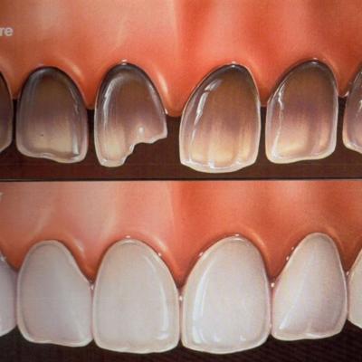 Dental veneers to hide discoloured and dark teeth in Southgate Eyes & Smiles Dental Clinic