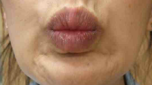 Botox Birmingham, Lip fillers Birmingham, Anti-wrinkle treatment Birmingham
