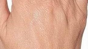 Botox Birmingham, Lip fillers Birmingham, Anti-wrinkle treatment Birmingham