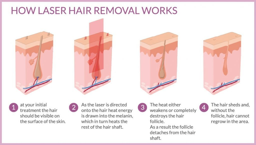 Laser Hair Removal Beauty Aesthetics Salon Kettering Semi Permanent Makeup Beauty Salon Kettering Northamptonshire Uk Emily Louise Beauty Aesthetics Emily Louise Beauty Kettering Laser Hair