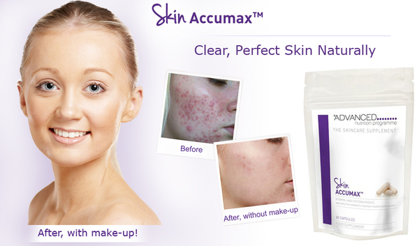 *Problem free skin this Summer!!*