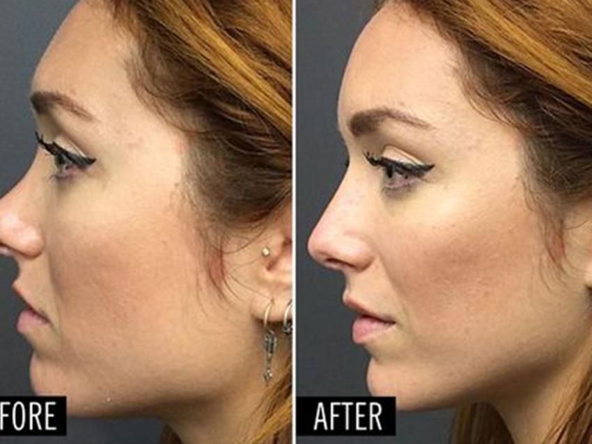 Facial Aesthetic