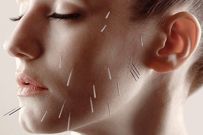 Natural Alternative to Botox Facial Acupuncture London , Cosmetic Acupuncture Chelsea, Facial Rejuvenation Acupuncture Bromley