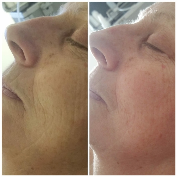 A new you - with our non surgical face lift!
