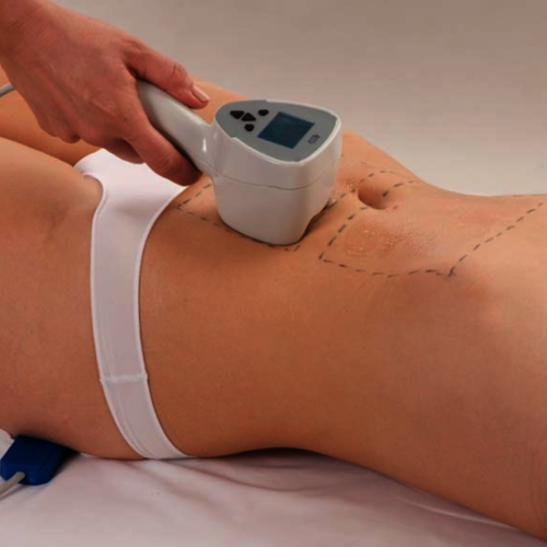 Exilis Radio Frequency