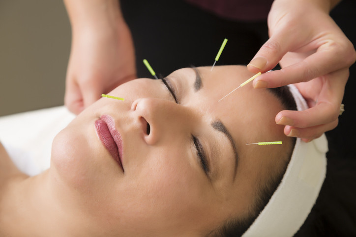 Cosmetic Facial Acupuncture