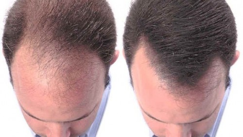 HAIR LOSS AND VITAMIN B7