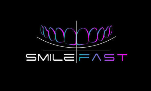 Composite bonding, WHite fillings, bonding, Smilefast