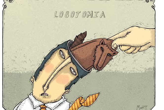 Lobotomía