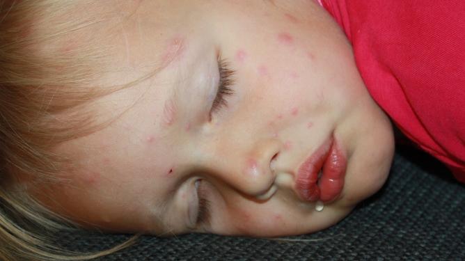 Denne lille jenta har vannkopper. Foto: Maren Eriksen