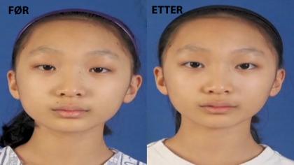 Før og etter bilde av 12 år gamle Lee Min-kyong. Skjermdump fra CNN.
