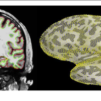 MEG and EEG data analysis with MN    preview & related info