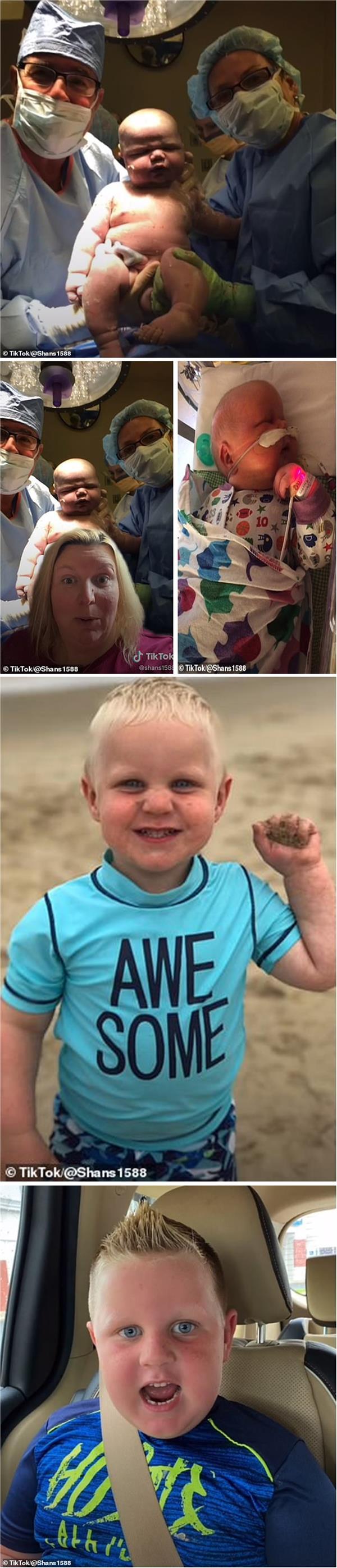 بريطانية تلد طفلاً وزنه 7 كيلوغرامات ... وشاهد 29 مليون شخص فيديو لمراحل حياته
