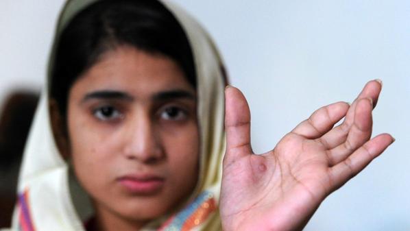 الناشطة الباكستانية في حقوق الإنسان ملالا يوسف