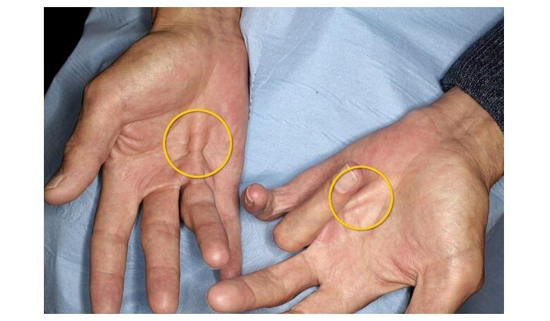 انثناء الأصابع