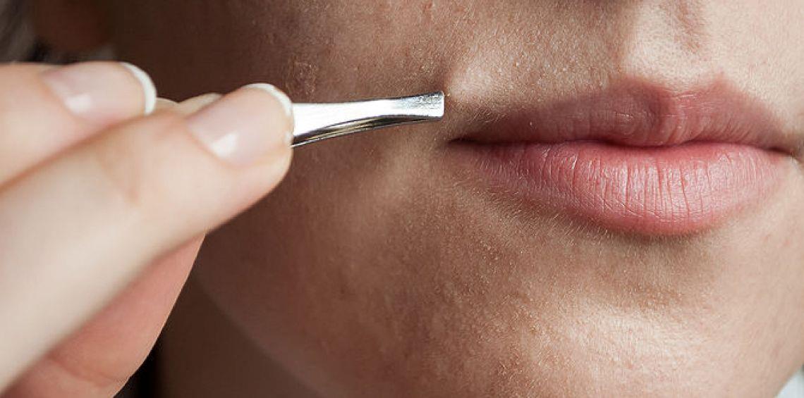 زيادة إفراز هرمون الذكورة لدى المرأة