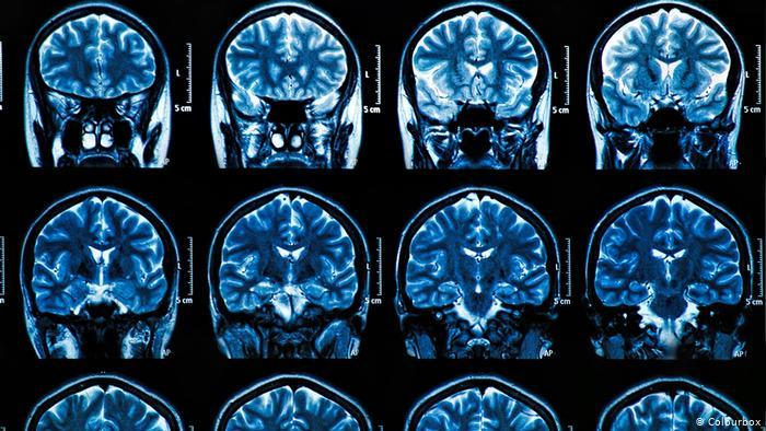 لقاح ألماني جديد يقضي على أورام الدماغ السرطانية