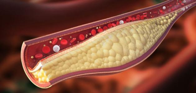لخفض مستوى الكوليسترول والدهون الثلاثية في الدم.. إليك هذه الأطعمة