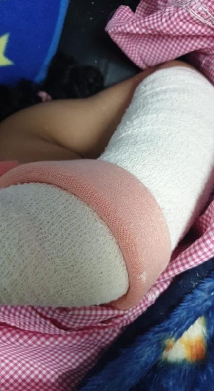 """إصابات خطيرة لطفلة بعد سقوطها من """"لعبة الموت"""" بأحد مراكز التسوق في المدينة."""