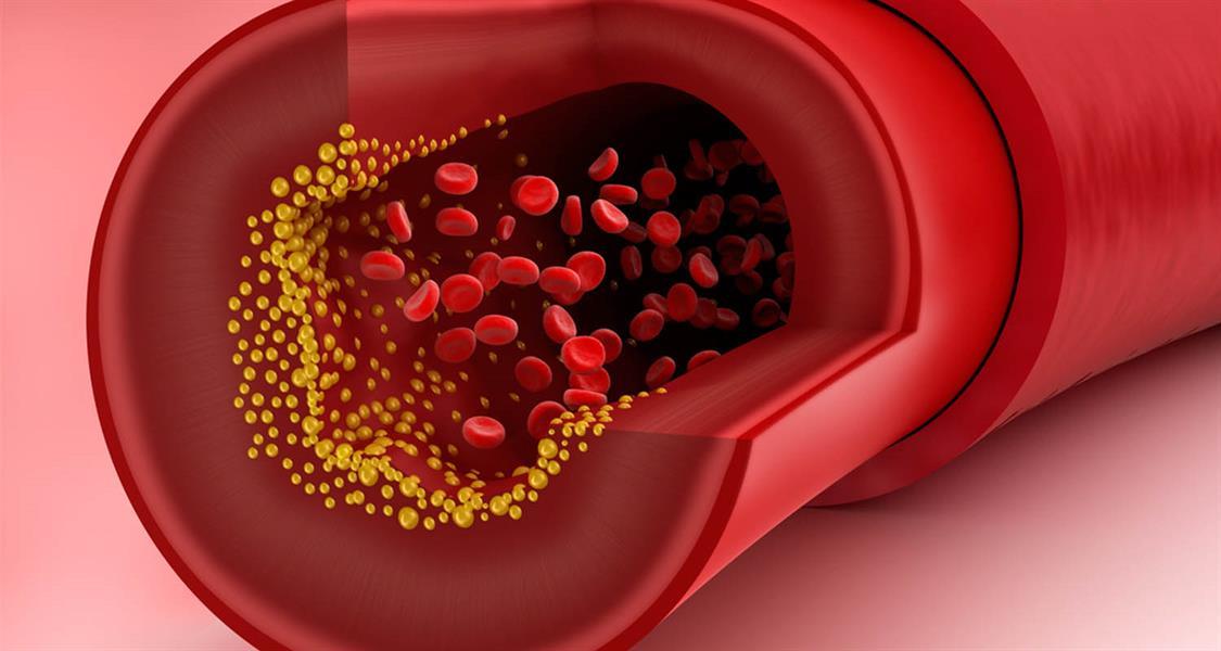 بينها الضحك.. 3 حلول سريعة تُخفض الكوليسترول بالدم