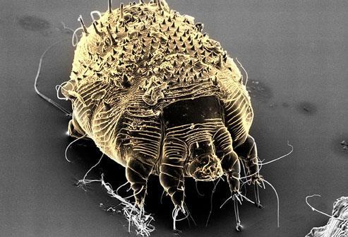 1- الجرب مرض جلدي تسببه حشرات متناهية الدقة