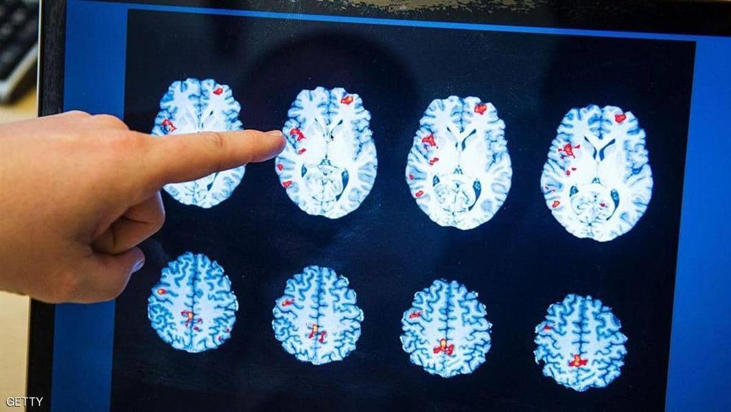 علماء يبتكرون طريقة جديدة لتحسين الذاكرة