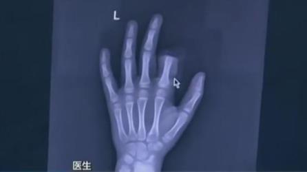 طفل يقطع إصبعه بسبب الجوال