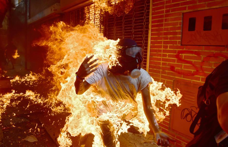 متظاهر يحترق بعد مواجهات مع الشرطة في فنزويلا في 3 مايو خلال احتجاجات ضد خطة الرئيس نيكولاس مادورو إعادة كتابة الدستور وتمسكه