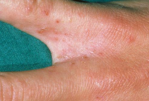 5- تعيش الحشرة في أي مكان في الجسم، ولكنها تفضل بين الأصابع، زاوية المعصم أو الكوع أو الركبة، في محيط الخصر والسرة، على الثدي