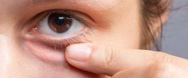 عيون منتفخة