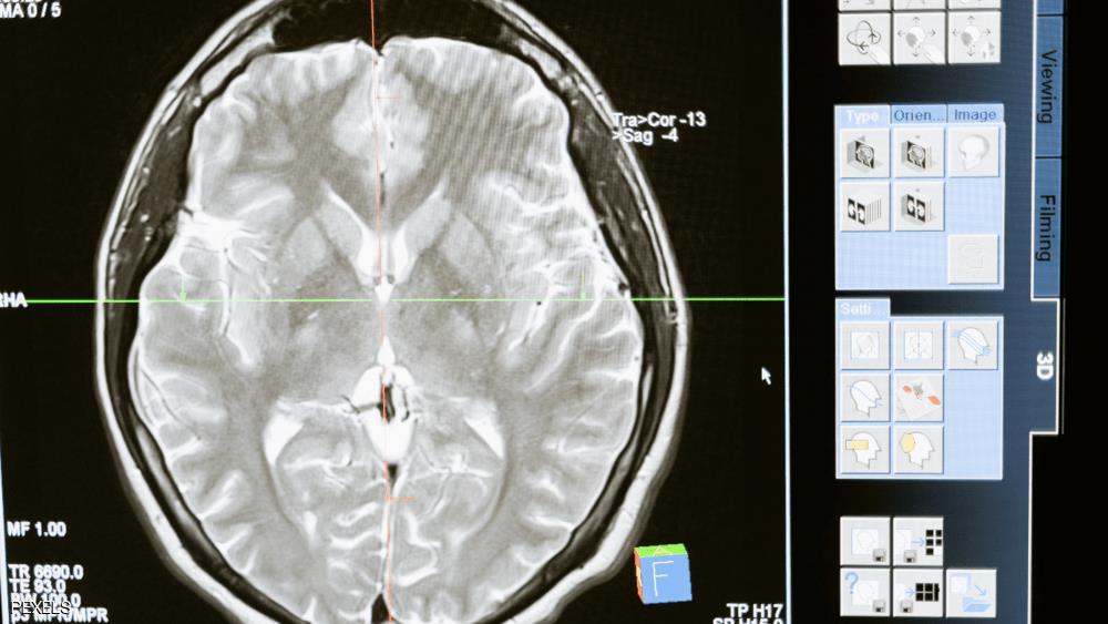 """الدماغ البشري والمعادن .. """"بشرى سارة"""" لمرض الزهايمر"""