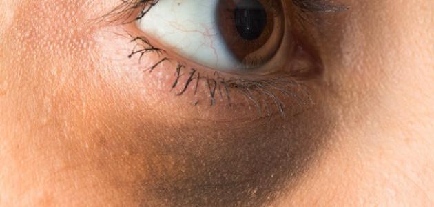 أسباب ظهور الهالات السوداء وطرق علاجها