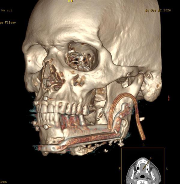 """""""فهد الطبية"""": استئصال ورم من فك مريض وزراعة جزء من عظمة الساق وأسنان تعويضية"""