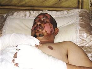 المصاب محمد يحيى