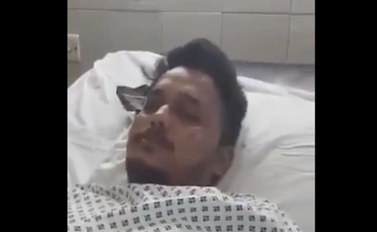 أحد الناجيَين من طائرة كراتشي المنكوبة يروى كيف نجا بأعجوبة من الحـادث