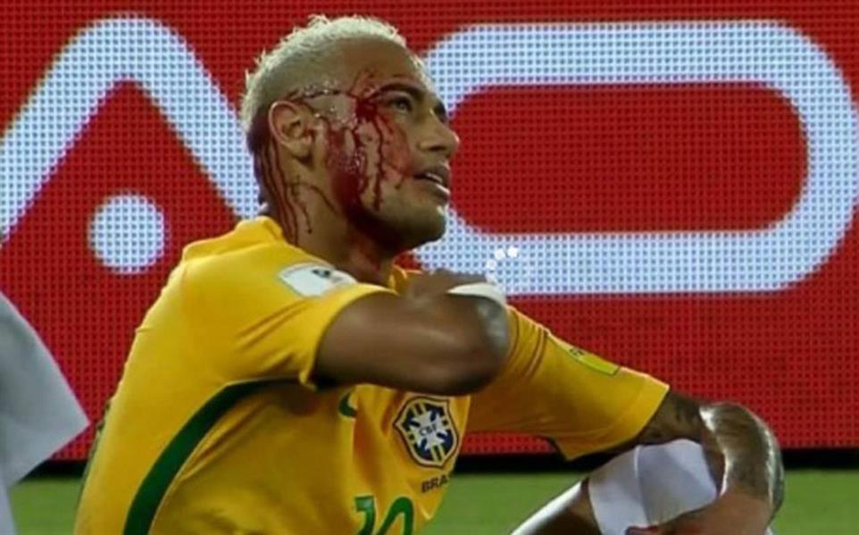"""بالفيديو: نيمار حاول القيام بـ """"كوبري"""" .. فانتهى به الامر ينزف الدماء"""