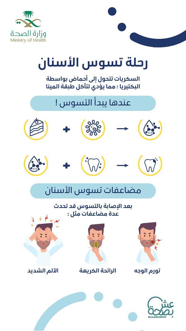 تورم بالوجه وآلام شديدة.. هذا ما يحدث عند الإصابة بتسوس الأسنان