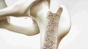 4 إرشادات للوقاية من هشاشة العظام.. وهذه نسبة الإصابة به في المملكة