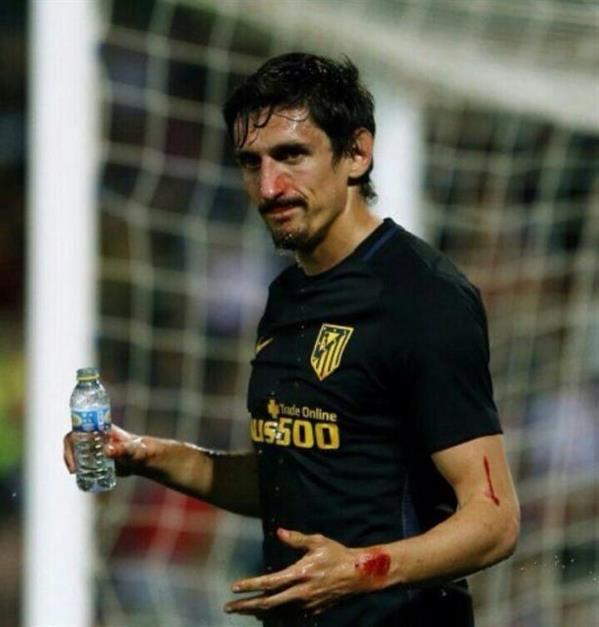بطولة إسبانيا: اصابة سافيتش بكسر في أنفه ترغمه على وضع قناع