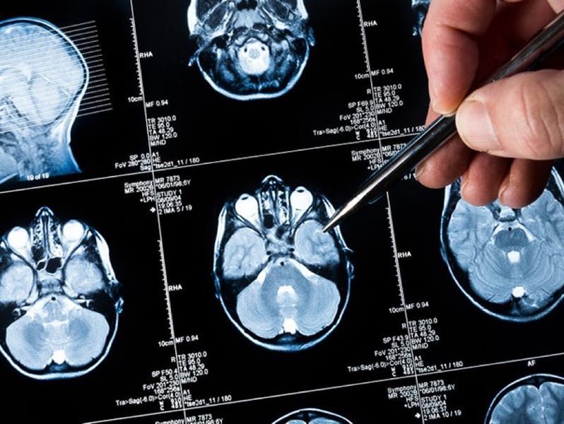 نتائج واعدة لاختبار أول لقاح لسرطان الدماغ