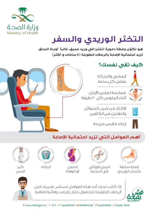 4 نصائح لتجنب الإصابة بالتخثر الوريدي عن السفر لمسافات طويلة